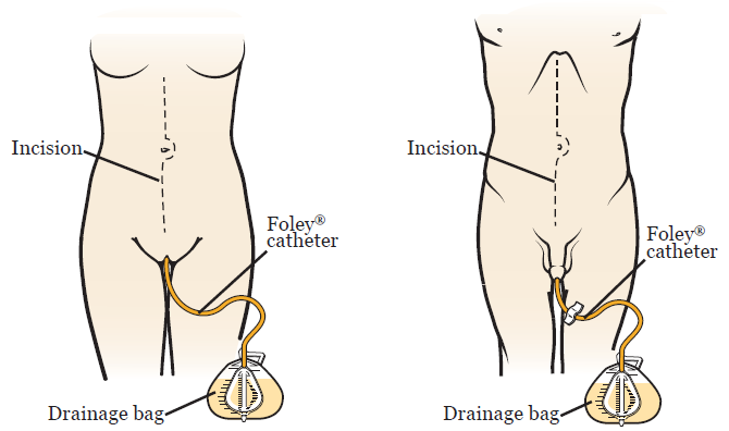 Figure 1. Foley catheter