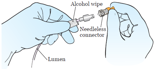 Figure 3.Twisting on the new needleless connector