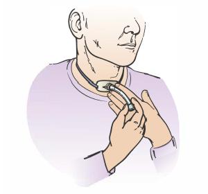 Рисунок 3.  Отсоединение внутренней канюли