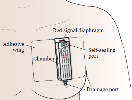 Figure 1. Thoracic vent