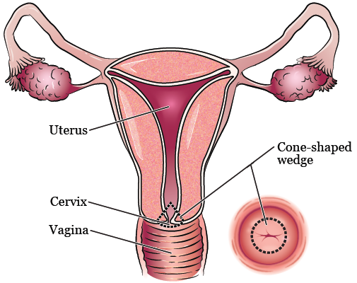 Caring for Yourself After Your Cone Biopsy of the Cervix