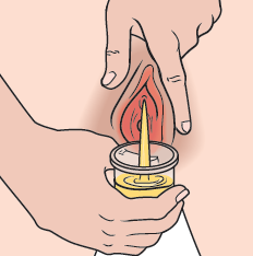 Figure 3. Urinating into the urine cup