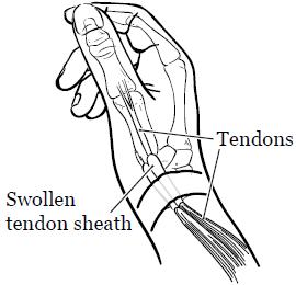 de quervain s tenosynovitis memorial sloan kettering cancer center Occupational Therapy Logo figure 1 wrist with de quervain s tenosynovitis