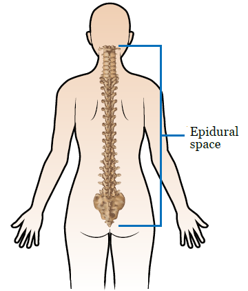 Leg weakness after epidural steroid injection steroids and alcohol effects