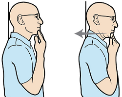 Figure 2. Chin tuck