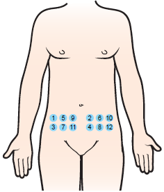 Figure 1. Choosing an injection site