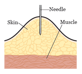 Figure 3. Inserting the needle