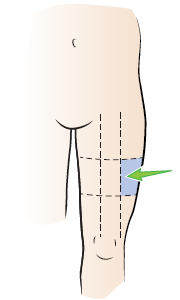 Figure 7. The injection site.