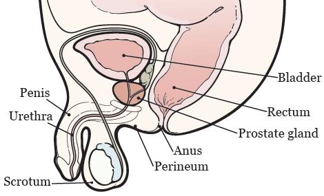 Tylenol pm y próstata agrandada con catéter