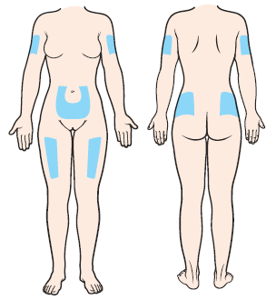 Figure 1. Injection sites