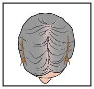 Figure 2. Picture of the top of your scalp