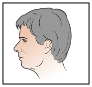 Figure 3. Picture of your left side