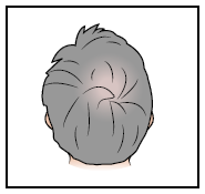 Figure 5. Picture of the top of your scalp