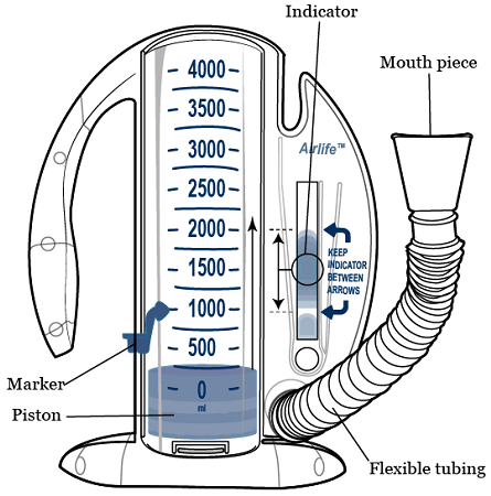 using a spirometer What does spirometry diagnose you will then be given a mouthpiece to place your mouth over which is connected to the machine called a spirometer.