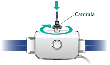 Figure 5. Connect the nasal cannula