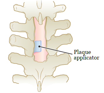 Figure 2. Plaque applicator on spine