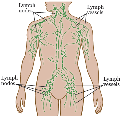 Lymphatic Mapping With Sentinel Node Biopsy Memorial Sloan