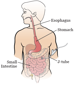 what kind of diet after esaphagus surgery