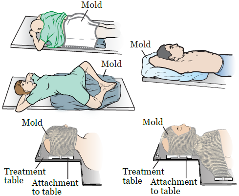 Figure 1. Examples of radiation therapy molds