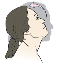 Figure 10. Head bent back