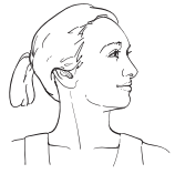 Figure 12. Head rotated to the left