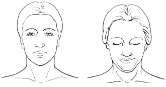 Figure 15. Chin tucked and head pulled back