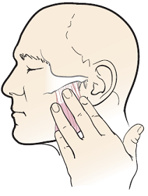 Figure 3. Massaging your jaw muscles