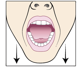 Figure 4. Mouth open wide