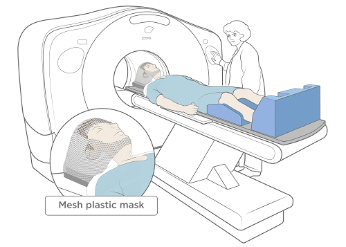 Figure 3. Computed Tomography (CT) scan with open face mesh mask