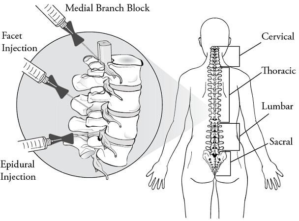 Figure 1. Types of spinal injections