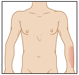 Figure 2. Picture of upper body from 4 feet away