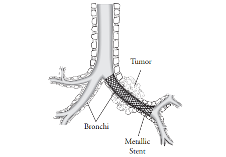 Figure 1. Close up of bronchi with tumor and a metallic stent opening the airway