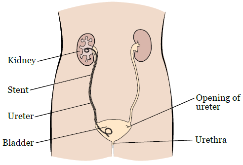 Having a Ureteric Stent - What to Expect and How to Manage · Kidney  SurgeryKidney HealthKidney Stones ...