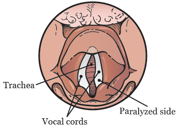 Figure 3. Paralyzed vocal cord on the right