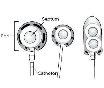 Figure 1. Examples of implanted ports