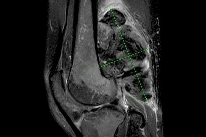 MRI image of a tumor behind the knee.
