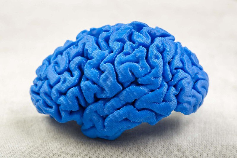 A model of a brain created by a 3-D printer.
