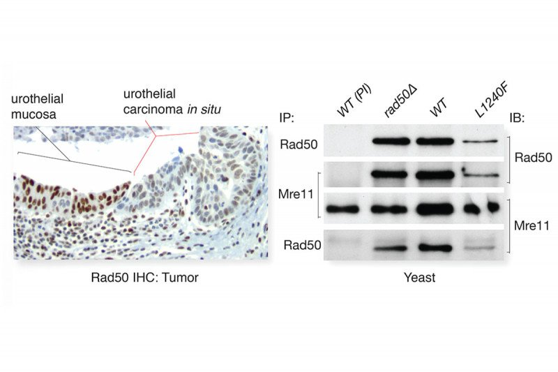 A urothelial tumor with a mutation in the gene Rad50.