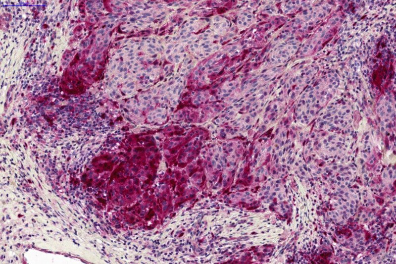 Stained melanoma tissue