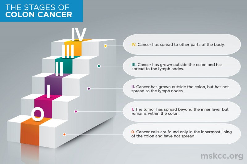 Diagram of the stage of colon cancer
