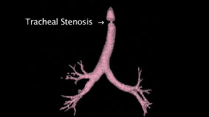 Tracheal stenosis is a narrowing of the windpipe that can occur after radiation therapy, prolonged use of a breathing tube, or other procedures.