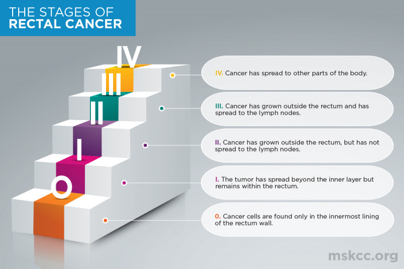 Stages of Rectal Cancer Infographic