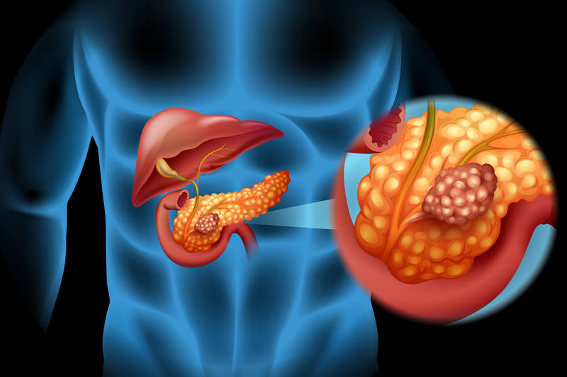 Illustration of human body with pancreas exploded to side and magnified.