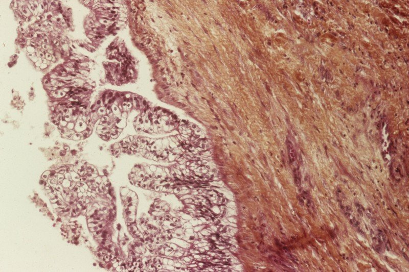 New initiatives are focused on clinical trials to target tumors in the pancreas.