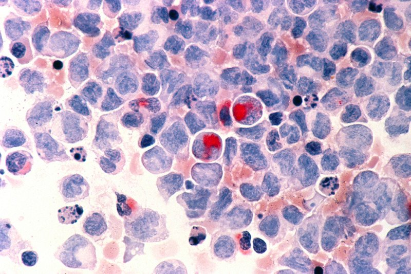 Acute myeloid leukemia cells