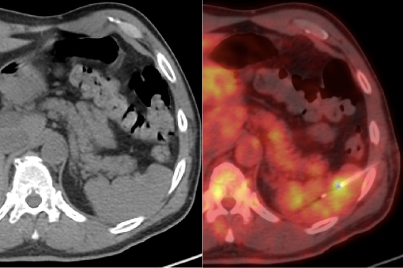 CT and PET/CT images of needle biopsy