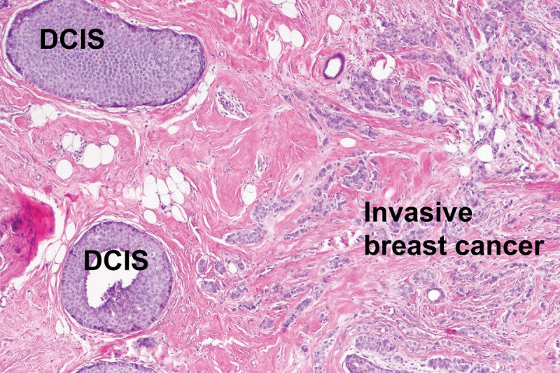Pathology slide showing DCIS and invasive cancer
