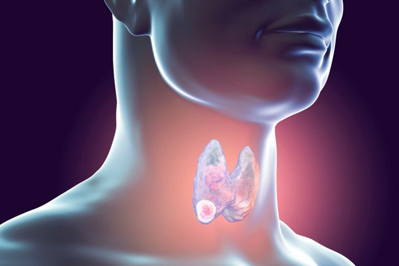 Breaking Bad Researchers Find Mutations That Turn Thyroid Cancers