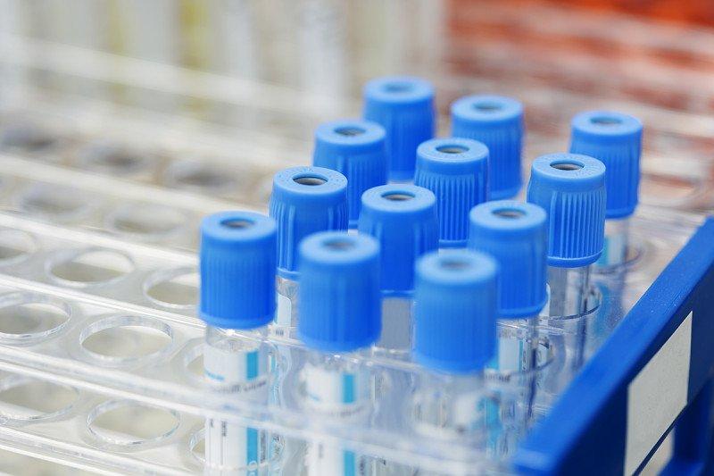 Rack of blood vials