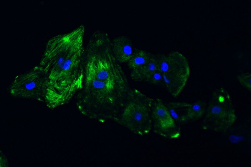 Stem cells induced to become cardiomyocytes